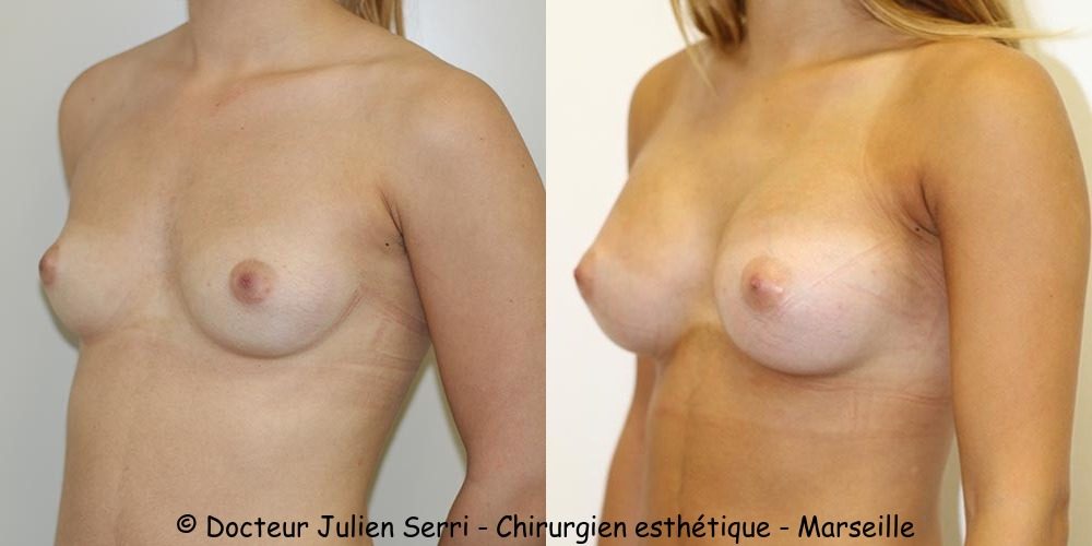 Prothèses mammaires rondes voie axillaire profil modéré 330 cc
