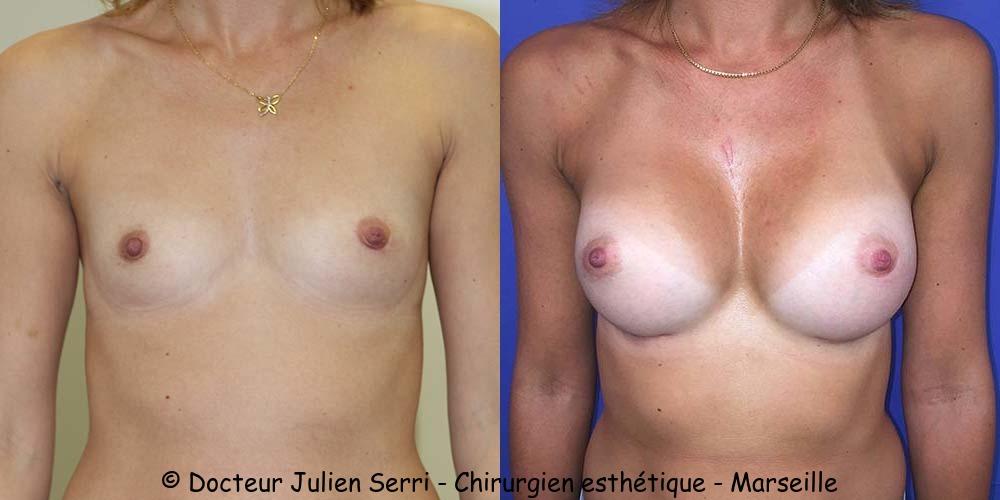 Prothèses mammaires anatomiques