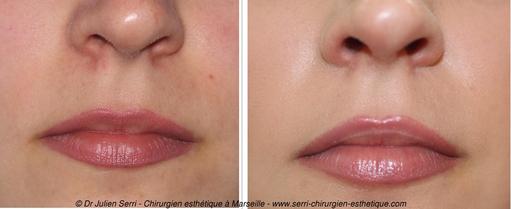 Acide Hyaluronique - Re-pulpage lèvres supérieures et inférieures
